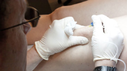 Medicina Estetica Carbossiterapia Gamba