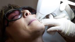 Medicina Estetica laser depilazione permanente